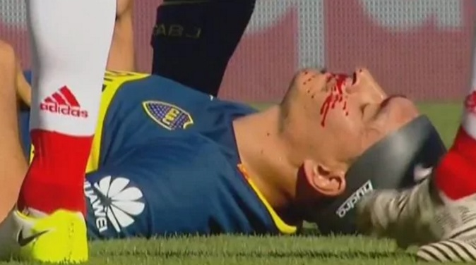 La cara de Paolo Goltz tras el choque