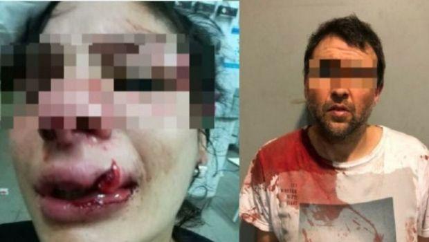 Desfiguró a su novia a golpes con un casco y huyó