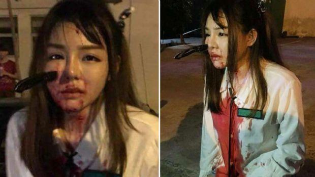 Una joven terminó con un cuchillo en la cara tras un asalto