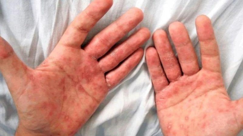 Se caudruplicaron los casos de sífilis.